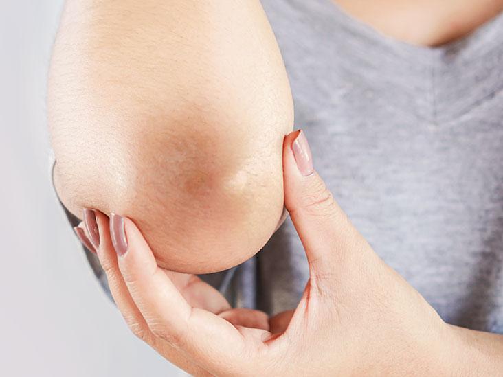 Home Remedies Elbows